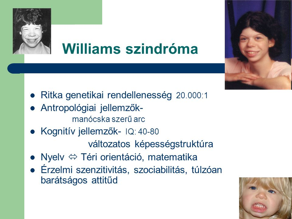 Williams szindróma Ritka genetikai rendellenesség 20.000:1 Antropológiai jellemzők- manócska szerű arc Kognitív jellemzők- IQ: 40-80 változatos képess
