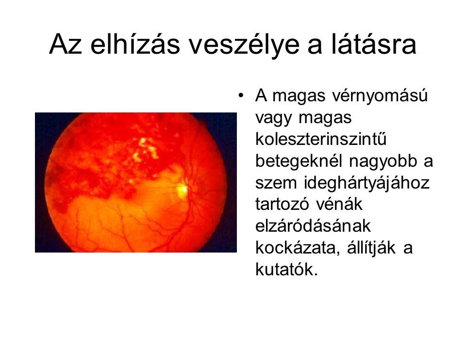 Az elhízás veszélye a látásra A magas vérnyomású vagy magas koleszterinszintű betegeknél nagyobb a szem ideghártyájához tartozó vénák elzáródásának ko