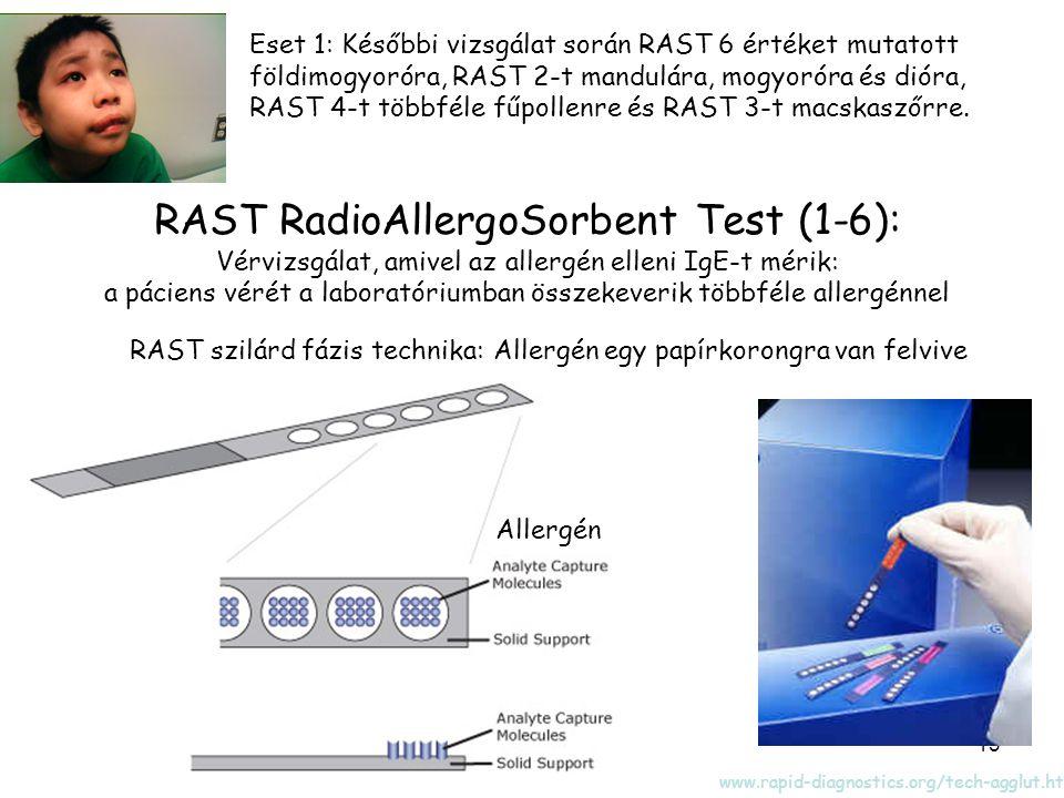 13 Eset 1: Későbbi vizsgálat során RAST 6 értéket mutatott földimogyoróra, RAST 2-t mandulára, mogyoróra és dióra, RAST 4-t többféle fűpollenre és RAST 3-t macskaszőrre.