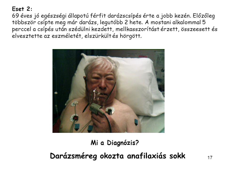 17 Eset 2: 69 éves jó egészségi állapotú férfit darázscsípés érte a jobb kezén. Előzőleg többször csípte meg már darázs, legutóbb 2 hete. A mostani al