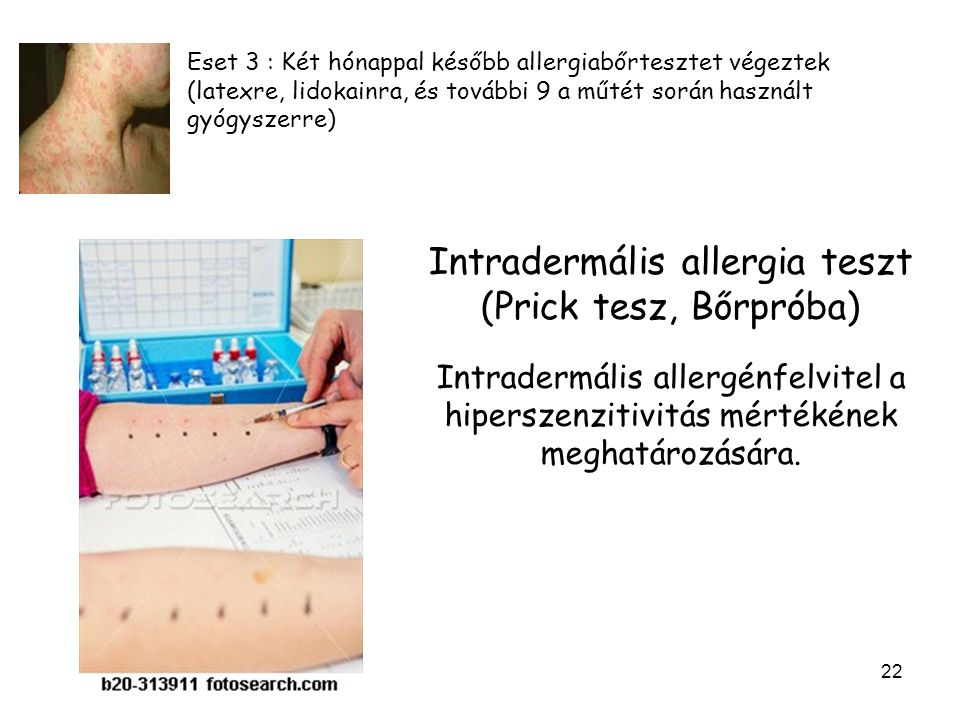 22 Eset 3 : Két hónappal később allergiabőrtesztet végeztek (latexre, lidokainra, és további 9 a műtét során használt gyógyszerre) Intradermális allergia teszt (Prick tesz, Bőrpróba) Intradermális allergénfelvitel a hiperszenzitivitás mértékének meghatározására.