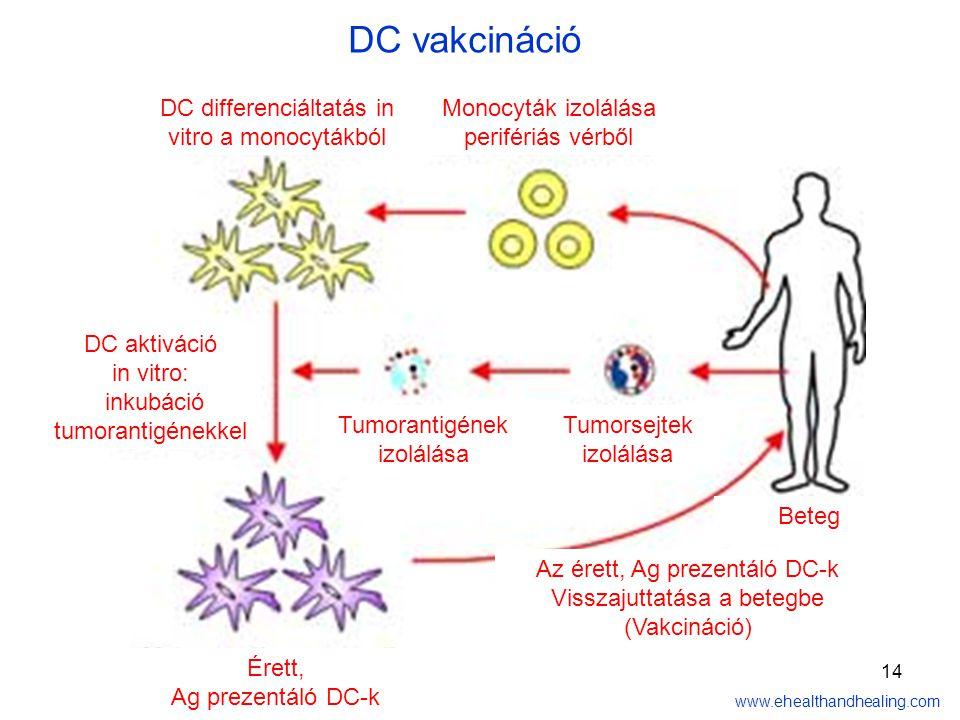 14 Monocyták izolálása perifériás vérből DC differenciáltatás in vitro a monocytákból Tumorsejtek izolálása Tumorantigének izolálása DC aktiváció in vitro: inkubáció tumorantigénekkel Érett, Ag prezentáló DC-k Az érett, Ag prezentáló DC-k Visszajuttatása a betegbe (Vakcináció) Beteg www.ehealthandhealing.com DC vakcináció