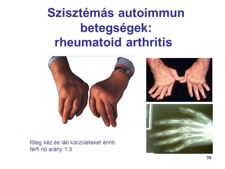 36 rheumatoid arthritis Szisztémás autoimmun betegségek: főleg kéz és láb kisízületeket érinti férfi nő arány 1:3