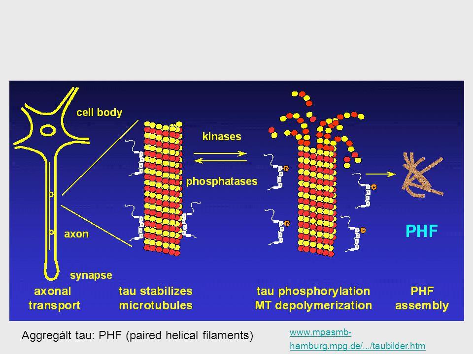 Aggregált tau: PHF (paired helical filaments) www.mpasmb- hamburg.mpg.de/.../taubilder.htm