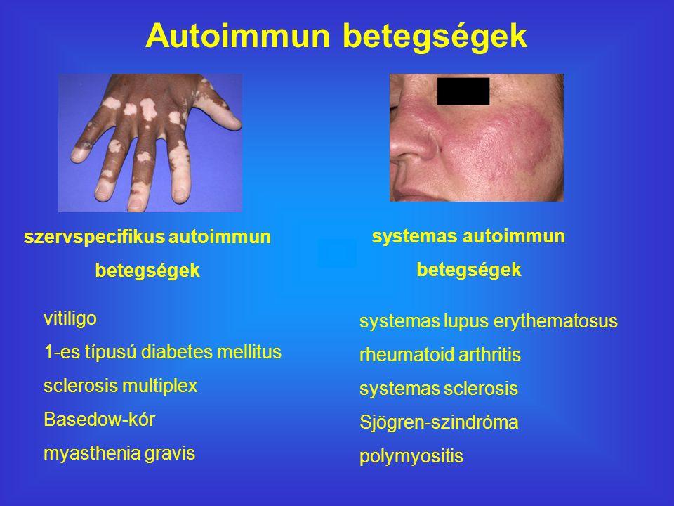 vitiligo 1-es típusú diabetes mellitus sclerosis multiplex Basedow-kór myasthenia gravis systemas lupus erythematosus rheumatoid arthritis systemas sclerosis Sjögren-szindróma polymyositis Autoimmun betegségek szervspecifikus autoimmun betegségek systemas autoimmun betegségek