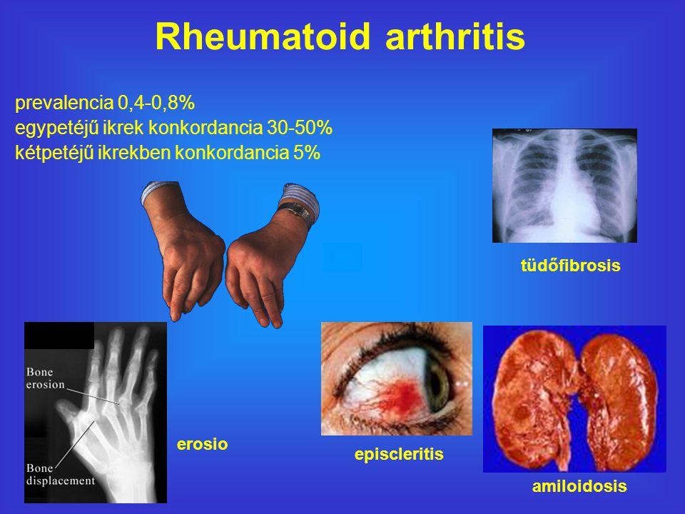 Rheumatoid arthritis episcleritis tüdőfibrosis amiloidosis erosio prevalencia 0,4-0,8% egypetéjű ikrek konkordancia 30-50% kétpetéjű ikrekben konkordancia 5%