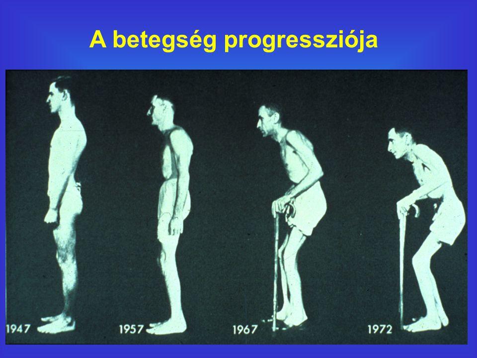 A betegség progressziója