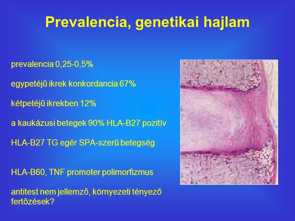 prevalencia 0,25-0,5% egypetéjű ikrek konkordancia 67% kétpetéjű ikrekben 12% a kaukázusi betegek 90% HLA-B27 pozitív HLA-B27 TG egér SPA-szerű betegség HLA-B60, TNF promoter polimorfizmus antitest nem jellemző, környezeti tényező fertőzések.