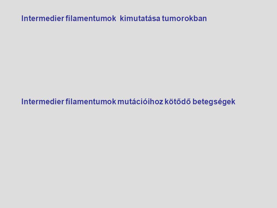 Intermedier filamentumok kimutatása tumorokban Intermedier filamentumok mutációihoz kötődő betegségek