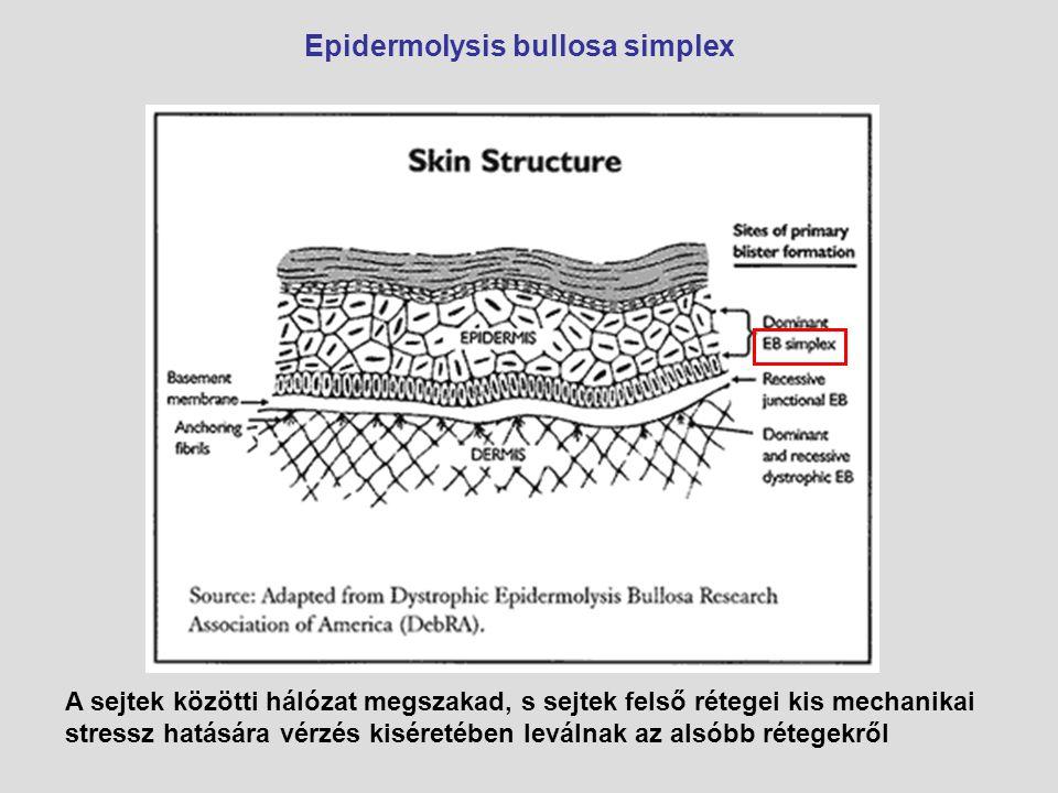 Epidermolysis bullosa simplex A sejtek közötti hálózat megszakad, s sejtek felső rétegei kis mechanikai stressz hatására vérzés kiséretében leválnak a