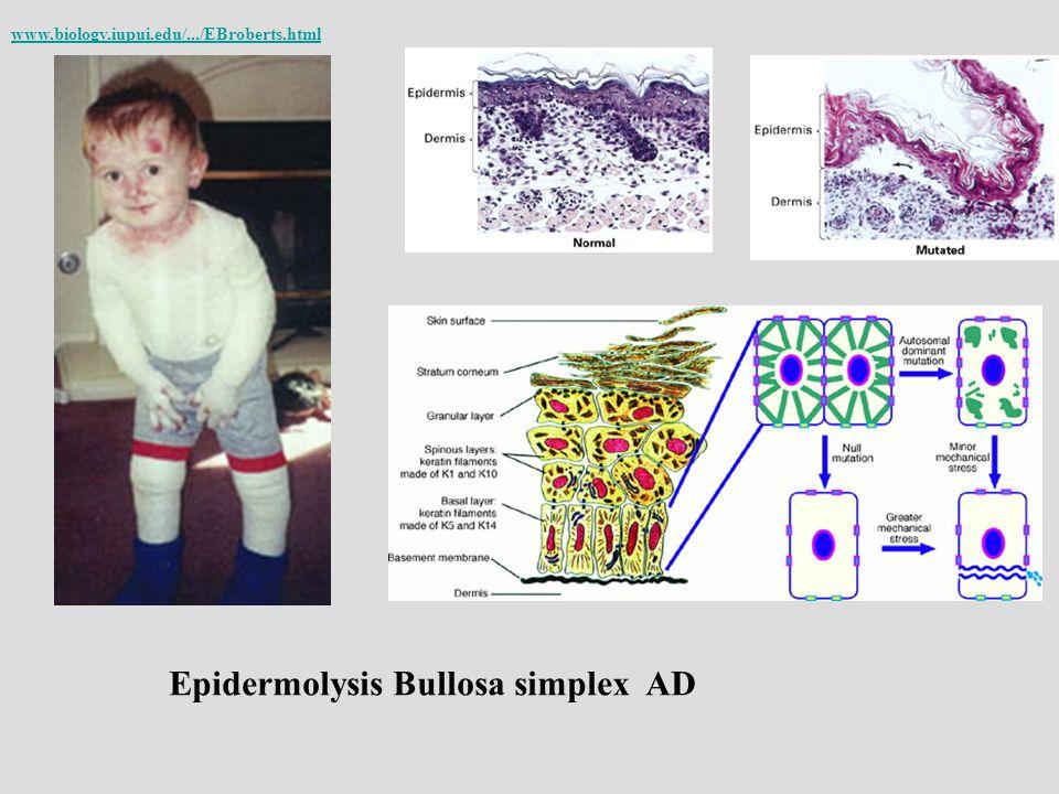* Epidermolysis Bullosa simplex AD www.biology.iupui.edu/.../EBroberts.html