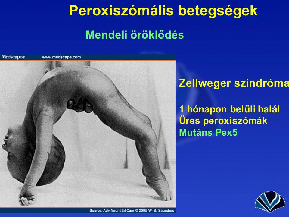 Peroxiszómális betegségek Mendeli öröklődés Zellweger szindróma 1 hónapon belüli halál Üres peroxiszómák Mutáns Pex5
