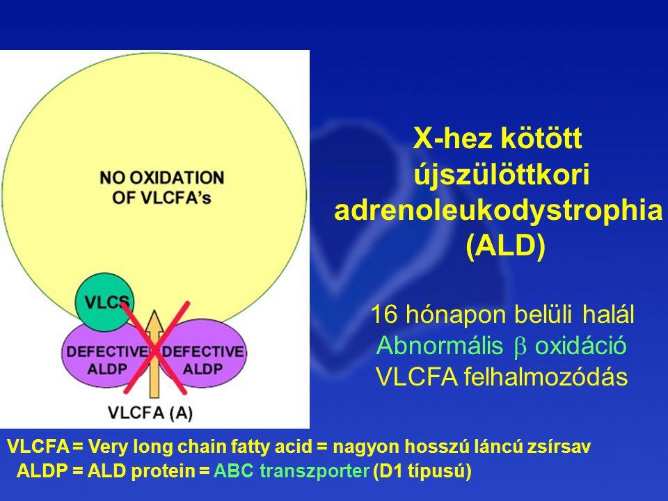 X-hez kötött újszülöttkori adrenoleukodystrophia (ALD) 16 hónapon belüli halál Abnormális  oxidáció VLCFA felhalmozódás VLCFA = Very long chain fatty acid = nagyon hosszú láncú zsírsav ALDP = ALD protein = ABC transzporter (D1 típusú)