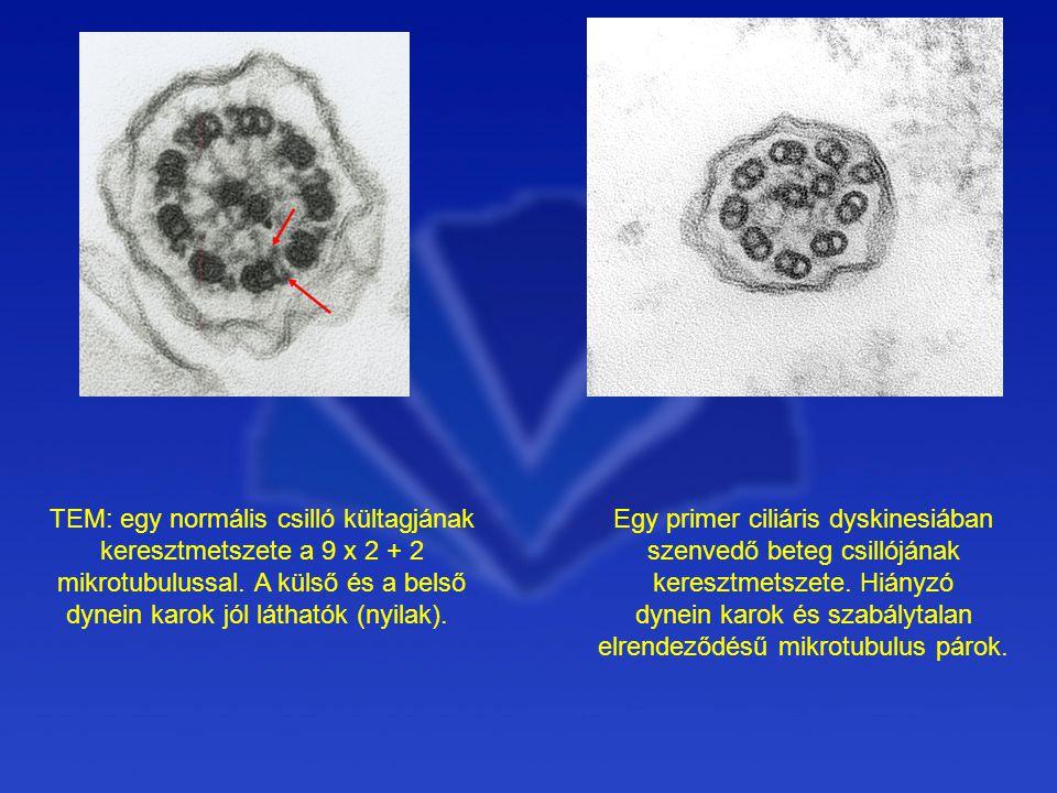 Egy primer ciliáris dyskinesiában szenvedő beteg csillójának keresztmetszete.