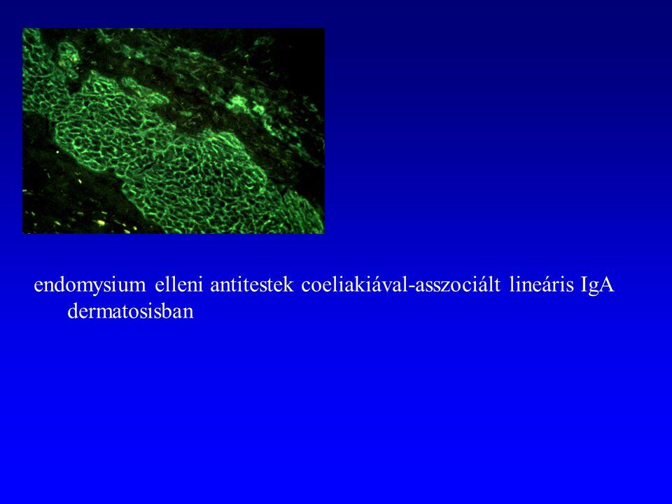 endomysium elleni antitestek coeliakiával-asszociált lineáris IgA dermatosisban