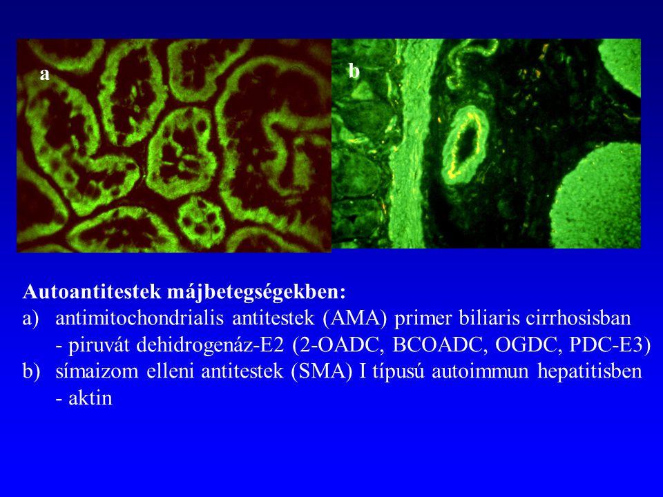 Autoantitestek májbetegségekben: a)antimitochondrialis antitestek (AMA) primer biliaris cirrhosisban - piruvát dehidrogenáz-E2 (2-OADC, BCOADC, OGDC,