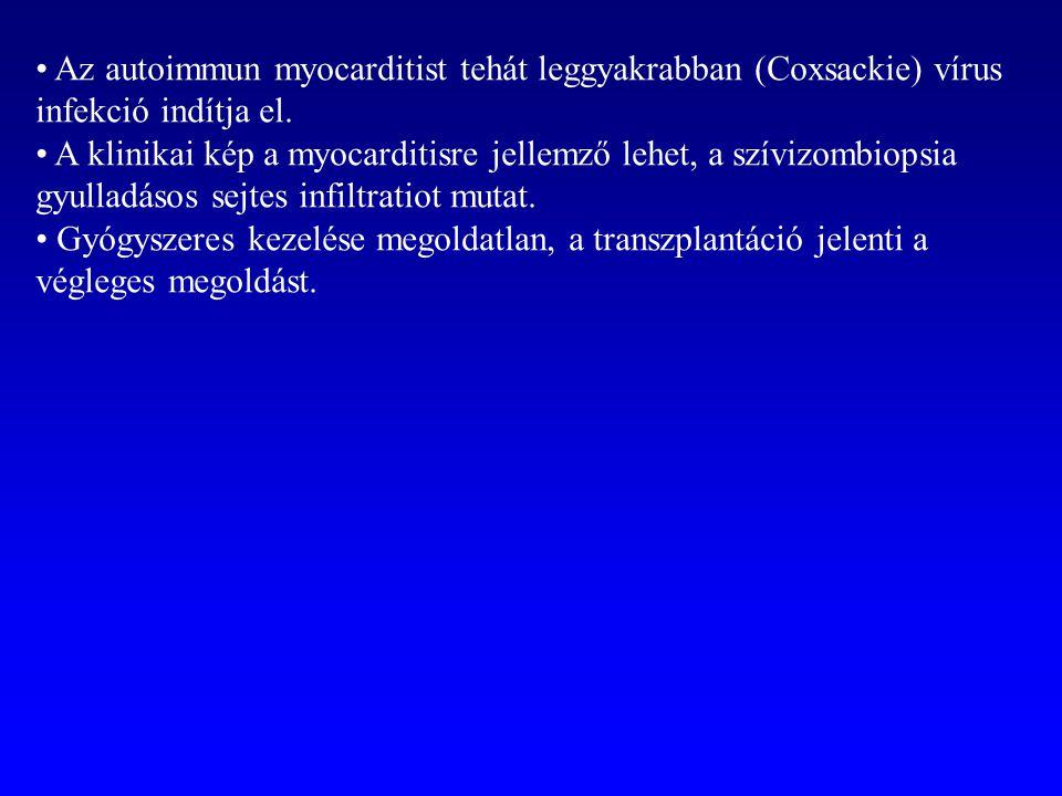 Az autoimmun myocarditist tehát leggyakrabban (Coxsackie) vírus infekció indítja el. A klinikai kép a myocarditisre jellemző lehet, a szívizombiopsia