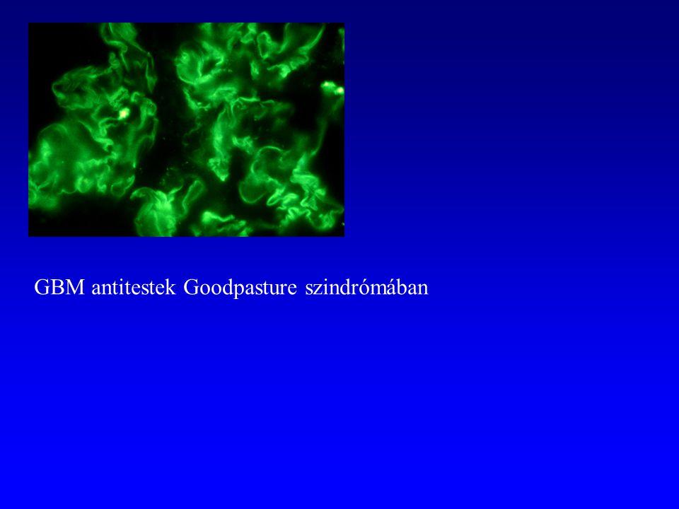 GBM antitestek Goodpasture szindrómában