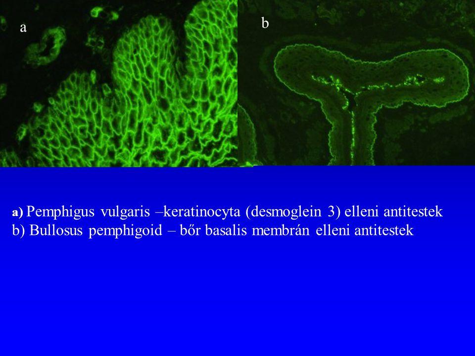 a b a) Pemphigus vulgaris –keratinocyta (desmoglein 3) elleni antitestek b) Bullosus pemphigoid – bőr basalis membrán elleni antitestek