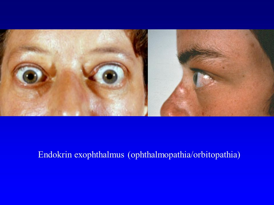 Endokrin exophthalmus (ophthalmopathia/orbitopathia)