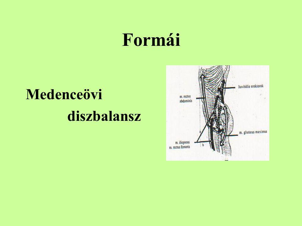Formái Vállövi diszbalansz Megrövidült izmok:  Pectoralis m.