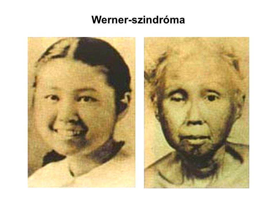 Werner-szindróma