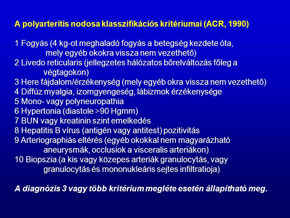 A polyarteritis nodosa klasszifikációs kritériumai (ACR, 1990) 1 Fogyás (4 kg-ot meghaladó fogyás a betegség kezdete óta, mely egyéb okokra vissza nem vezethető) 2 Livedo reticularis (jellegzetes hálózatos bőrelváltozás főleg a végtagokon) 3 Here fájdalom/érzékenység (mely egyéb okra vissza nem vezethető) 4 Diffúz myalgia, izomgyengeség, lábizmok érzékenysége 5 Mono- vagy polyneuropathia 6 Hypertonia (diastole >90 Hgmm) 7 BUN vagy kreatinin szint emelkedés 8 Hepatitis B vírus (antigén vagy antitest) pozitivitás 9 Arteriographiás eltérés (egyéb okokkal nem magyarázható aneurysmák, occlusiok a visceralis arteriákon) 10 Biopszia (a kis vagy közepes arteriák granulocytás, vagy granulocytás és mononukleáris sejtes infiltratioja) A diagnózis 3 vagy több kritérium megléte esetén állapítható meg.