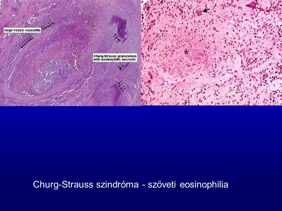 Churg-Strauss szindróma - szöveti eosinophilia