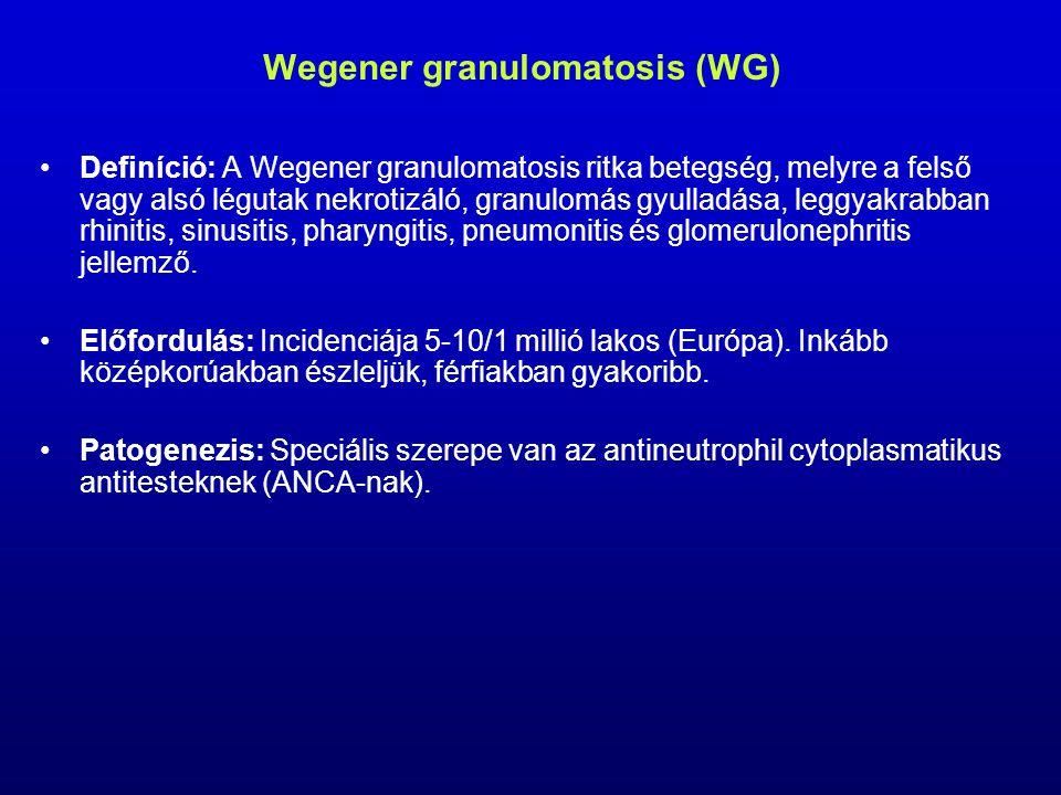 Wegener granulomatosis (WG) Definíció: A Wegener granulomatosis ritka betegség, melyre a felső vagy alsó légutak nekrotizáló, granulomás gyulladása, leggyakrabban rhinitis, sinusitis, pharyngitis, pneumonitis és glomerulonephritis jellemző.