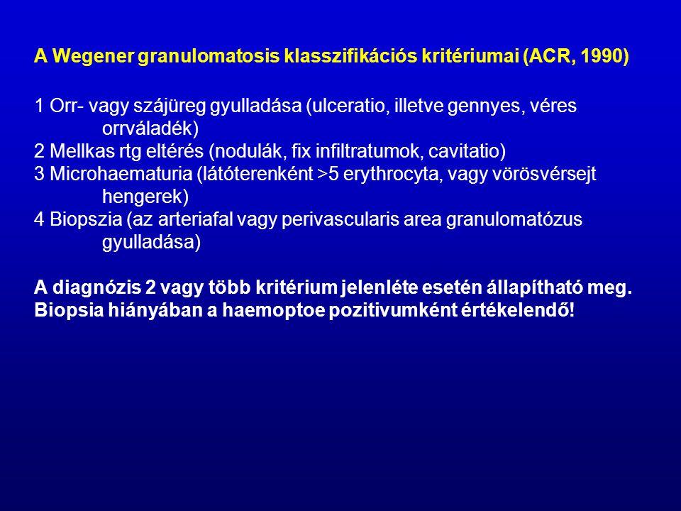 A Wegener granulomatosis klasszifikációs kritériumai (ACR, 1990) 1 Orr- vagy szájüreg gyulladása (ulceratio, illetve gennyes, véres orrváladék) 2 Mellkas rtg eltérés (nodulák, fix infiltratumok, cavitatio) 3 Microhaematuria (látóterenként >5 erythrocyta, vagy vörösvérsejt hengerek) 4 Biopszia (az arteriafal vagy perivascularis area granulomatózus gyulladása) A diagnózis 2 vagy több kritérium jelenléte esetén állapítható meg.