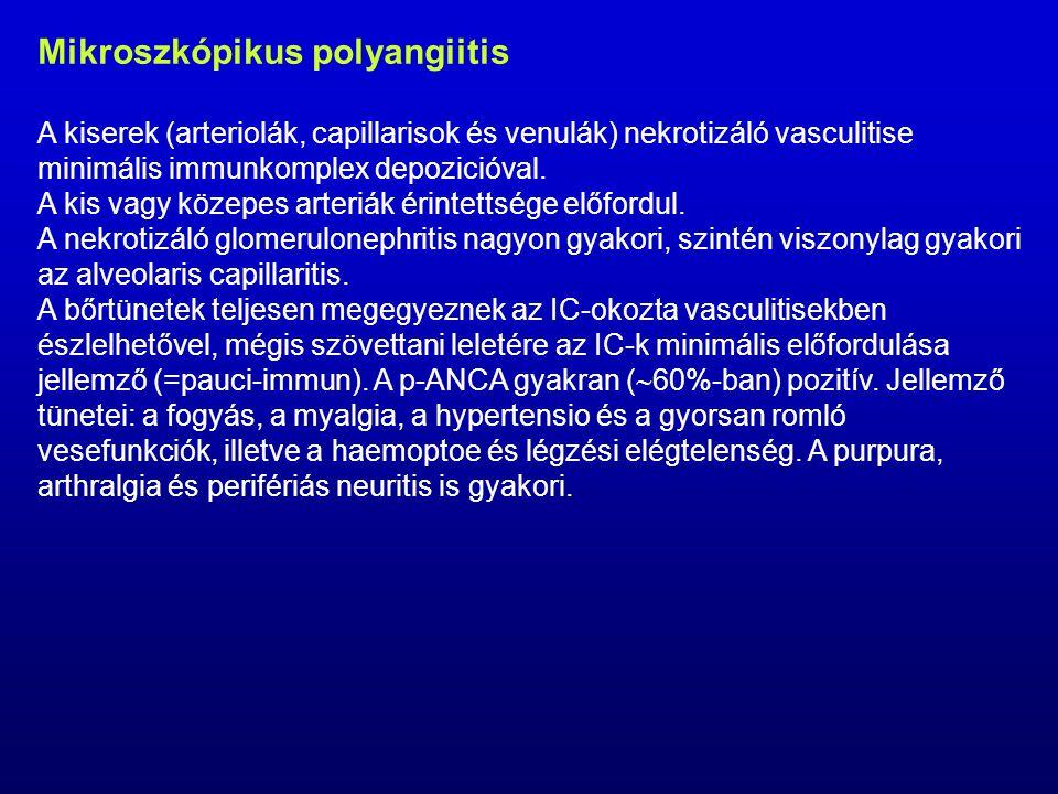 Mikroszkópikus polyangiitis A kiserek (arteriolák, capillarisok és venulák) nekrotizáló vasculitise minimális immunkomplex depozicióval.