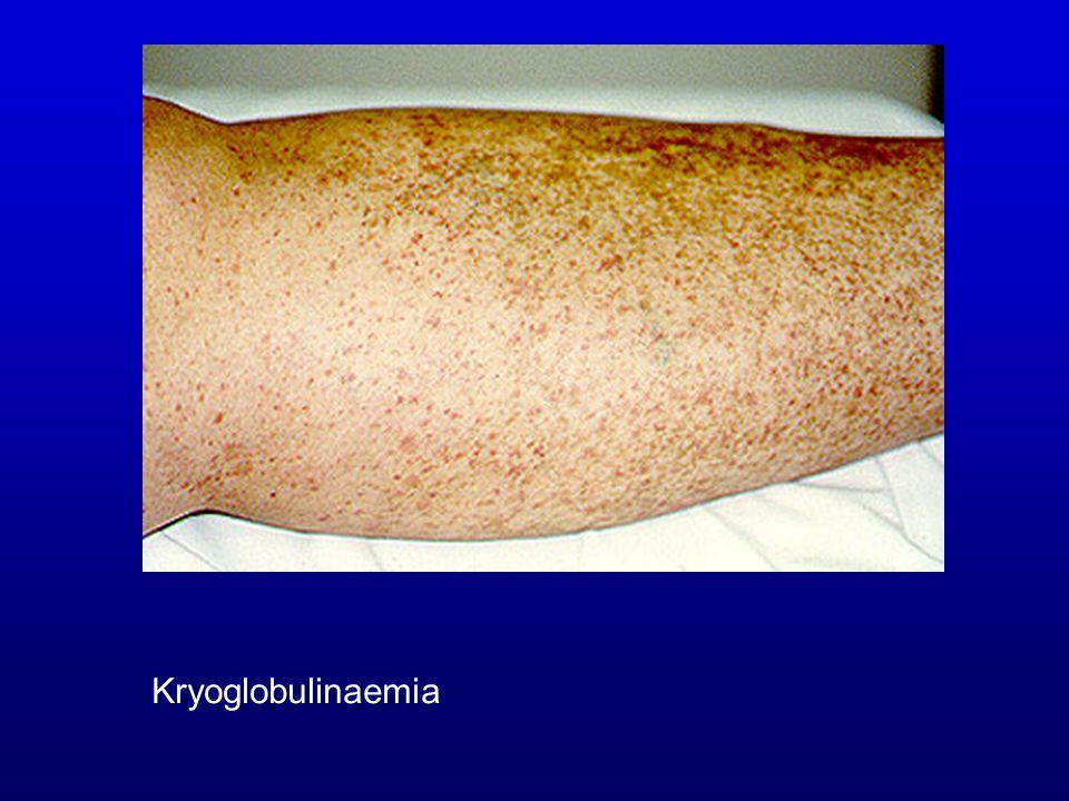 Kryoglobulinaemia