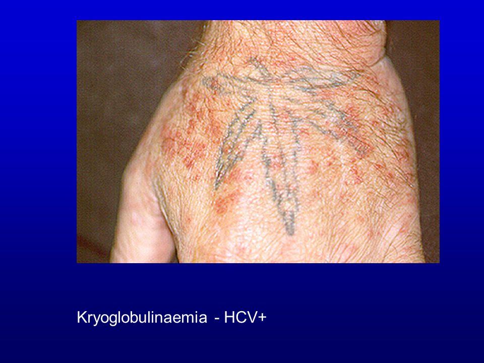Kryoglobulinaemia - HCV+