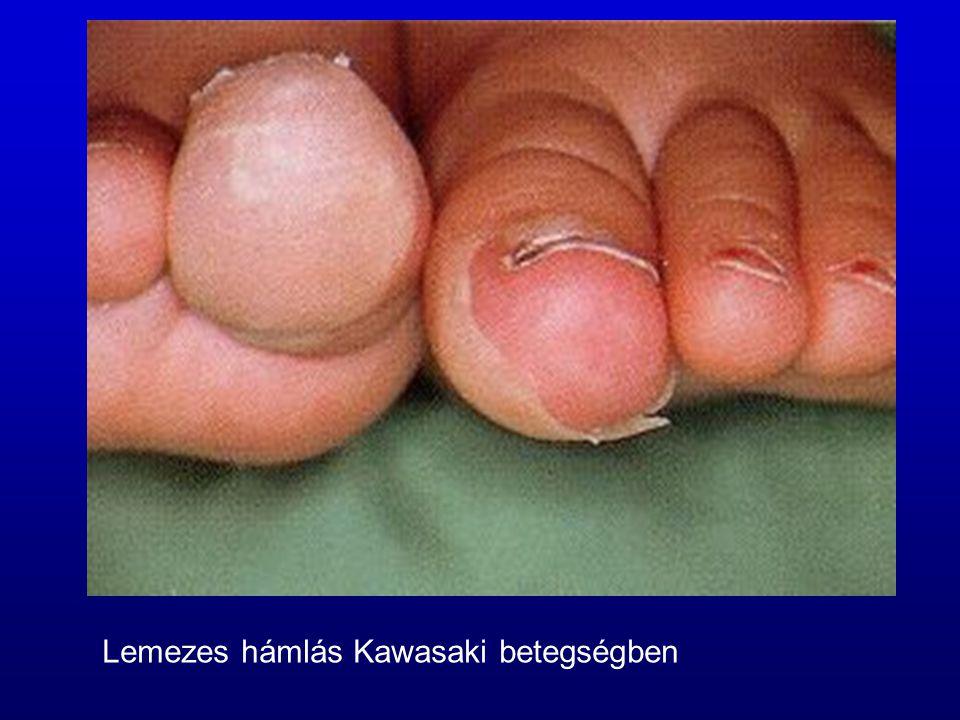 Lemezes hámlás Kawasaki betegségben