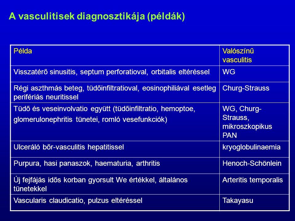A vasculitisek diagnosztikája (példák) PéldaValószínű vasculitis Visszatérő sinusitis, septum perforatioval, orbitalis eltérésselWG Régi aszthmás beteg, tüdőinfiltratioval, eosinophiliával esetleg perifériás neuritissel Churg-Strauss Tüdő és veseinvolvatio együtt (tüdőinfiltratio, hemoptoe, glomerulonephritis tünetei, romló vesefunkciók) WG, Churg- Strauss, mikroszkopikus PAN Ulceráló bőr-vasculitis hepatitisselkryoglobulinaemia Purpura, hasi panaszok, haematuria, arthritisHenoch-Schönlein Új fejfájás idős korban gyorsult We értékkel, általános tünetekkel Arteritis temporalis Vascularis claudicatio, pulzus eltérésselTakayasu