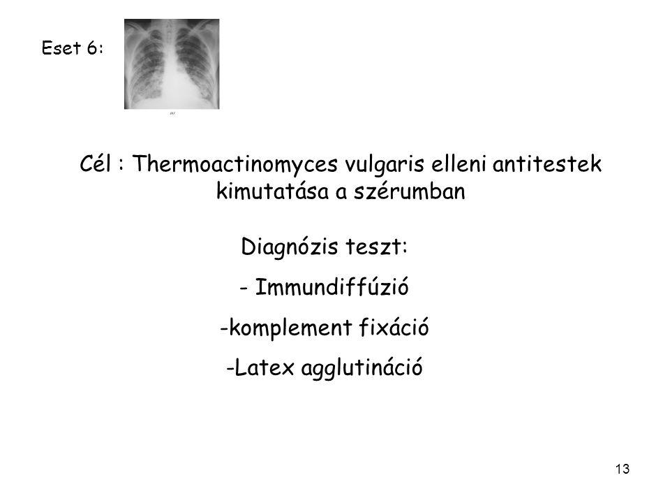13 Cél : Thermoactinomyces vulgaris elleni antitestek kimutatása a szérumban Diagnózis teszt: - Immundiffúzió -komplement fixáció -Latex agglutináció Eset 6: