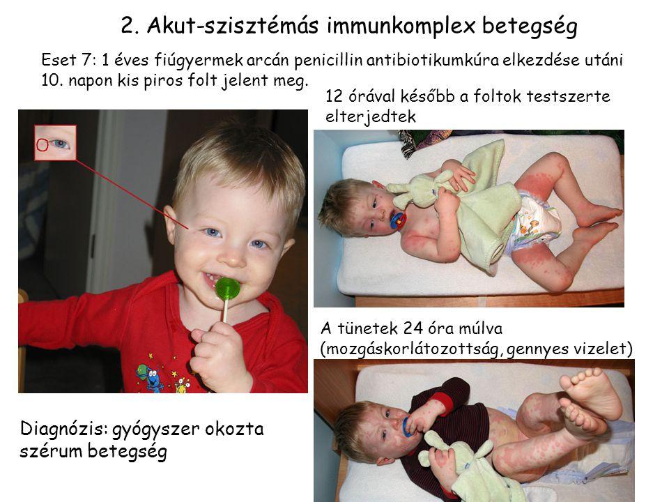 17 Eset 7: 1 éves fiúgyermek arcán penicillin antibiotikumkúra elkezdése utáni 10.