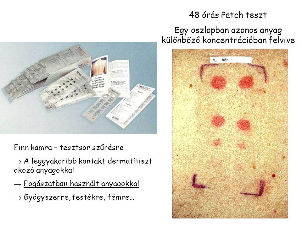 24 48 órás Patch teszt Egy oszlopban azonos anyag különböző koncentrációban felvive Finn kamra – tesztsor szűrésre  A leggyakoribb kontakt dermatitiszt okozó anyagokkal  Fogászatban használt anyagokkal  Gyógyszerre, festékre, fémre…