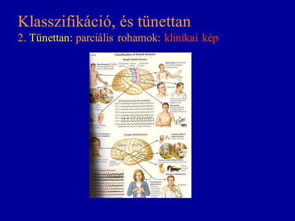 Klasszifikáció, és tünettan 2. Tünettan: parciális rohamok: klinikai kép