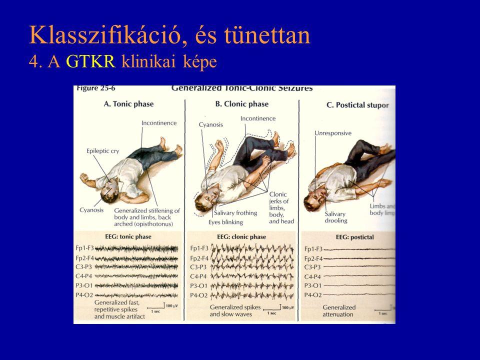 Klasszifikáció, és tünettan 4. A GTKR klinikai képe