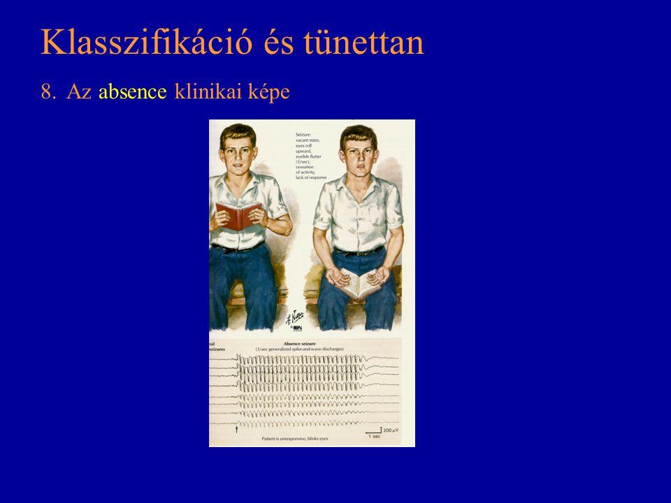 Klasszifikáció és tünettan 8. Az absence klinikai képe