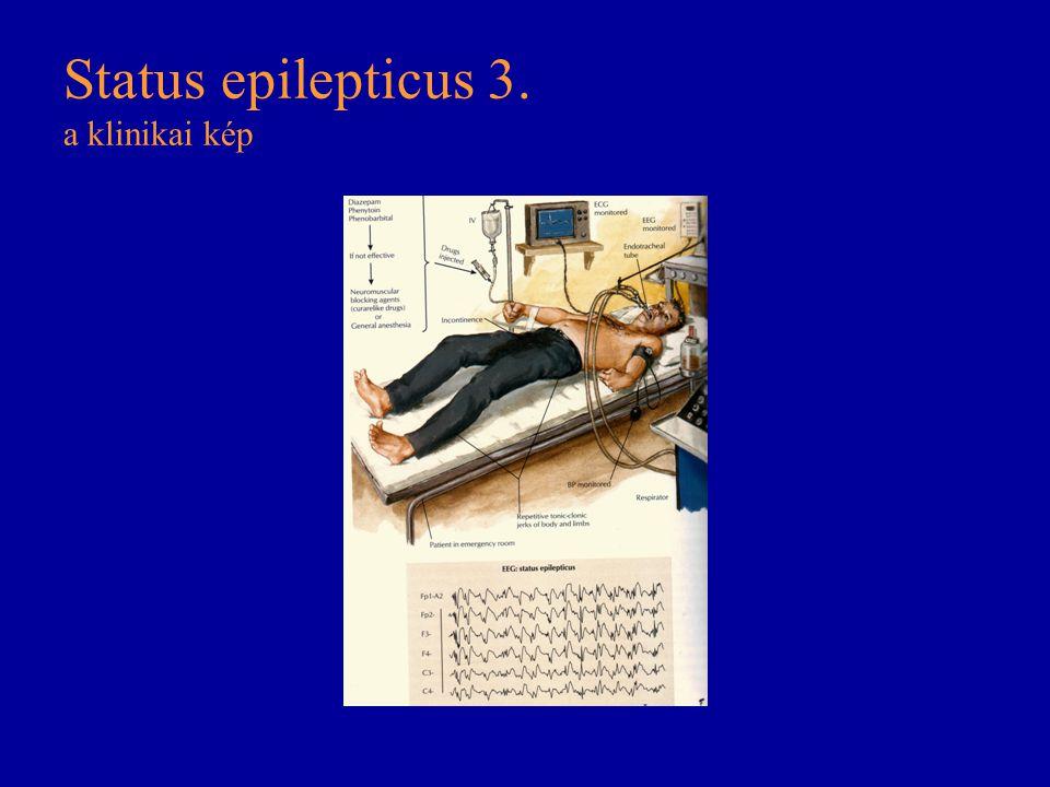 Status epilepticus 3. a klinikai kép