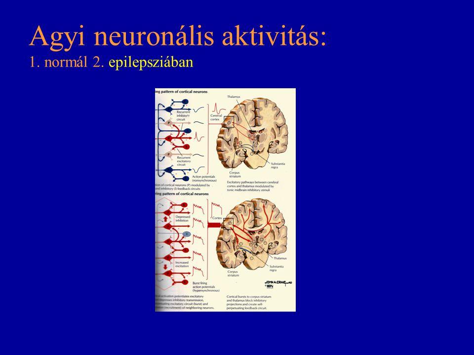 Agyi neuronális aktivitás: 1. normál 2. epilepsziában