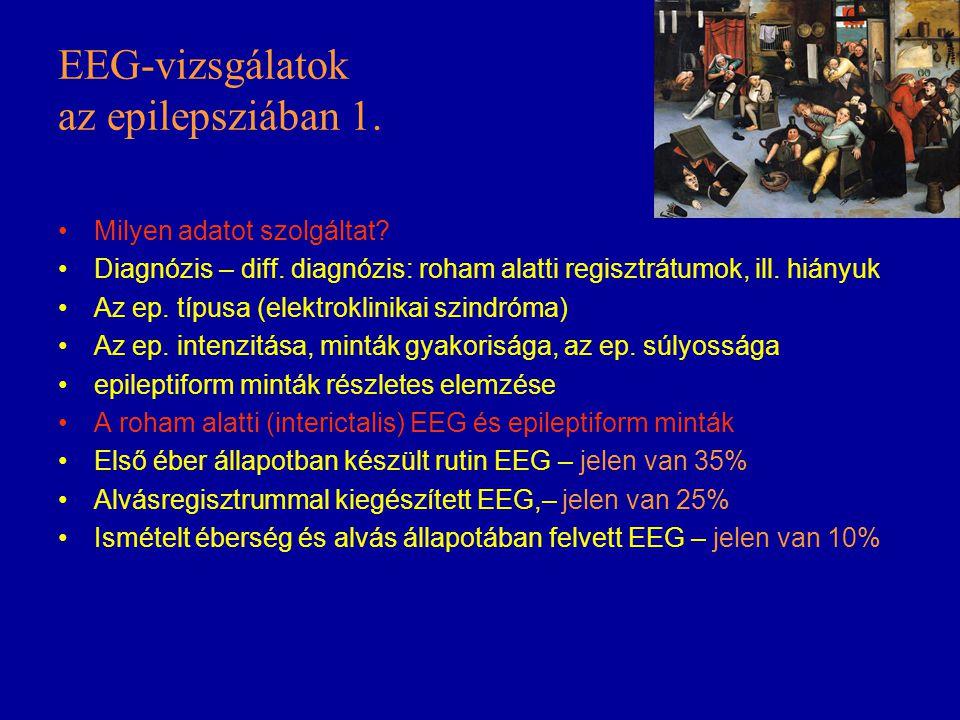 EEG-vizsgálatok az epilepsziában 1. Milyen adatot szolgáltat? Diagnózis – diff. diagnózis: roham alatti regisztrátumok, ill. hiányuk Az ep. típusa (el