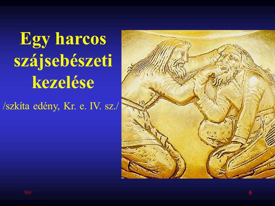 Egy harcos szájsebészeti kezelése /szkíta edény, Kr. e. IV. sz./ /96/ 6