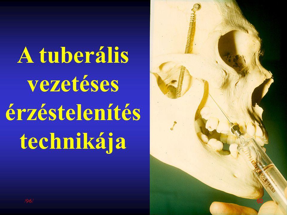 A tuberális vezetéses érzéstelenítés technikája /96/ 60