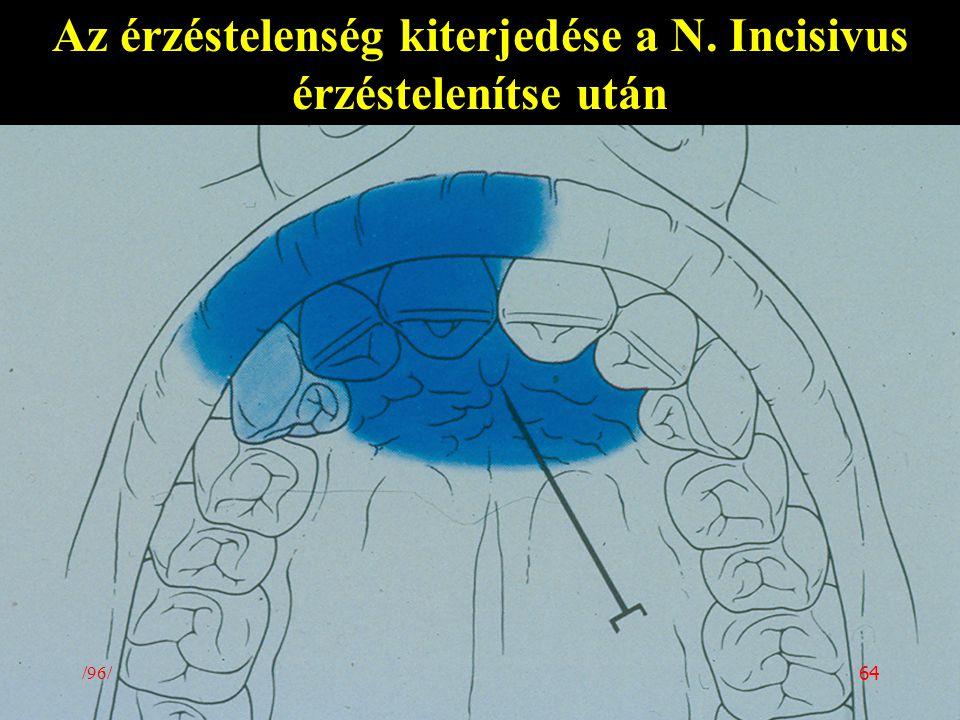 Az érzéstelenség kiterjedése a N. Incisivus érzéstelenítse után /96/ 64