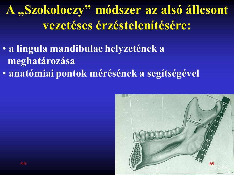 """A """"Szokoloczy"""" módszer az alsó állcsont vezetéses érzéstelenítésére: a lingula mandibulae helyzetének a meghatározása anatómiai pontok mérésének a seg"""