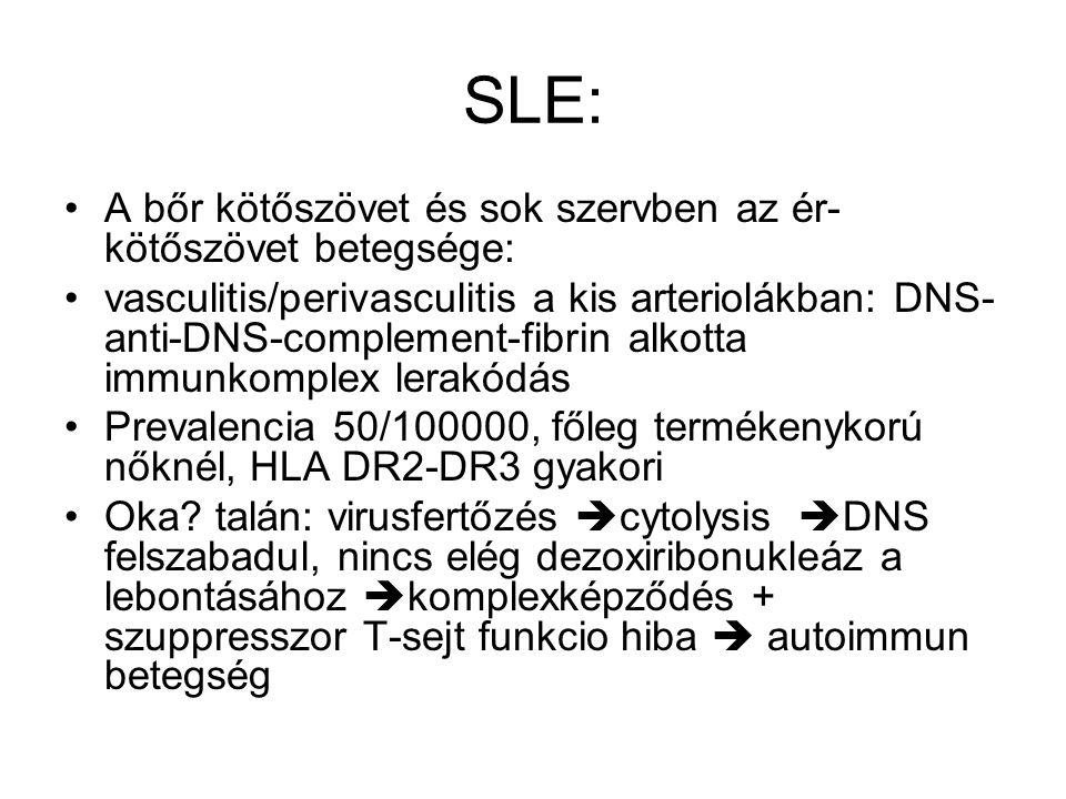 SLE: A bőr kötőszövet és sok szervben az ér- kötőszövet betegsége: vasculitis/perivasculitis a kis arteriolákban: DNS- anti-DNS-complement-fibrin alko