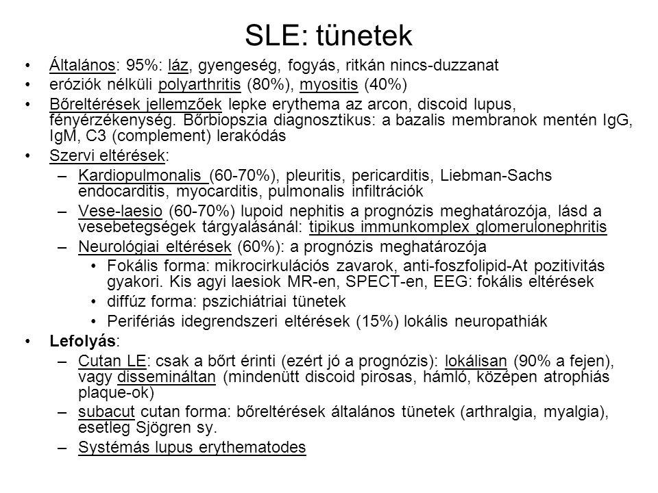 SLE: tünetek Általános: 95%: láz, gyengeség, fogyás, ritkán nincs-duzzanat eróziók nélküli polyarthritis (80%), myositis (40%) Bőreltérések jellemzőek